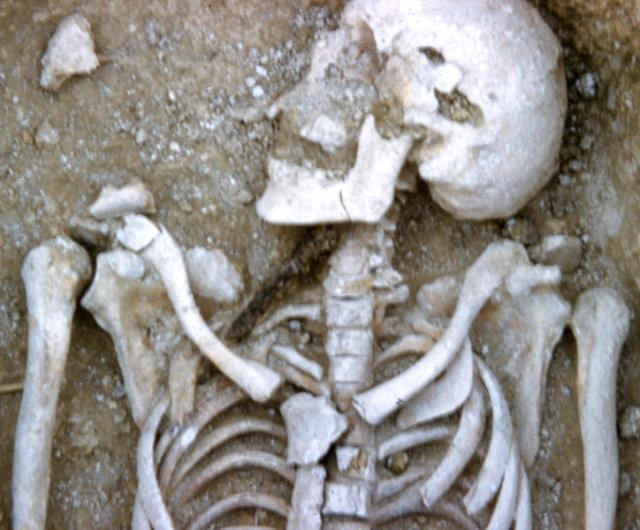 The sekelton of a man who died in the seventh century AD. Next to his neck and embedded in the top of his chest is the spearhead that killed him.