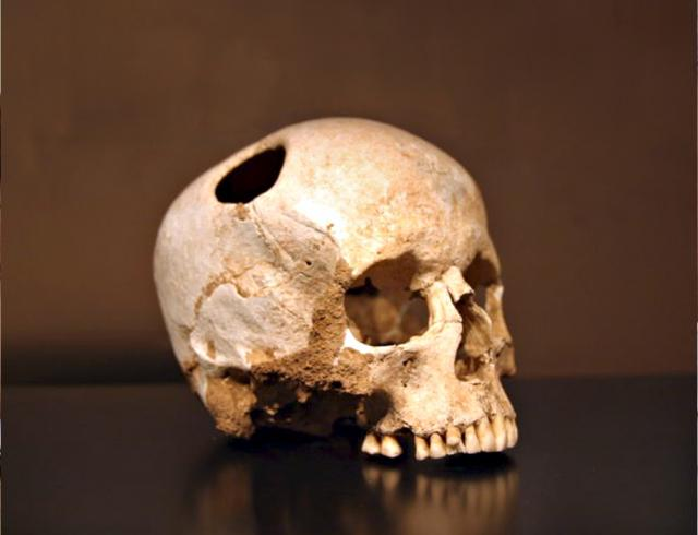 A number of skull remains have been found worldwide with holes drilled into them. It is possible that this was done to release evil spirits. Some of the holes had partially healed over, showing the person lived on after the event and it was not intended to kill them. This practice may have been used...